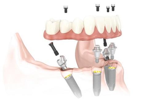 Trồng răng implant ở Cần Thơ an toàn hiệu quả cao-3