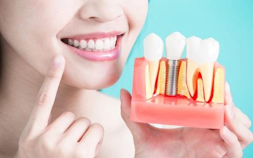 Trồng răng implant ở Cần Thơ an toàn hiệu quả cao-4