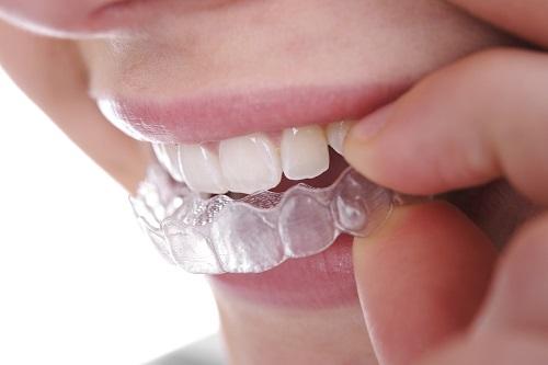 Dịch vụ tẩy trắng răng bằng máng bao nhiêu tiền? 1