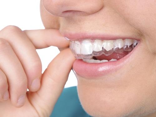 Dịch vụ tẩy trắng răng bằng máng bao nhiêu tiền? 2