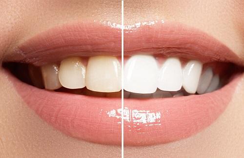 Dịch vụ tẩy trắng răng bằng máng bao nhiêu tiền? 3