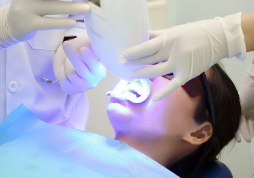 Tẩy trắng răng xong có được đánh răng không? Đâu là câu trả lời đúng 2
