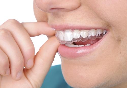Tẩy trắng răng bằng máng có tốt không? Tìm hiểu cách thực hiện 1