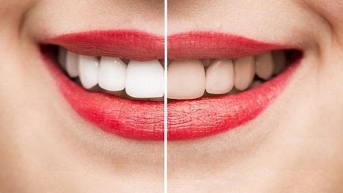 Tẩy trắng răng bằng máng có tốt không? Tìm hiểu cách thực hiện 3