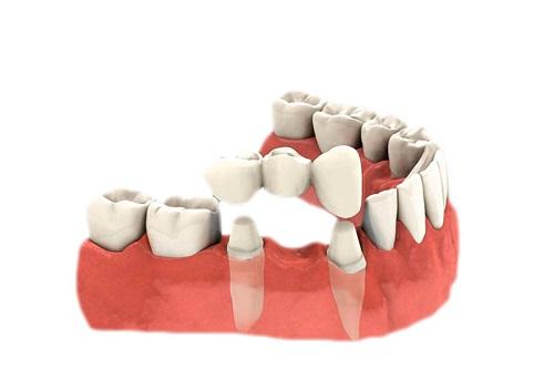Trồng răng bằng cầu răng - Kỹ thuật phục hình hiệu quả 1
