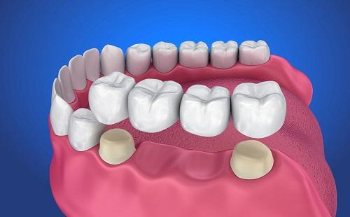 Trồng răng bằng cầu răng - Kỹ thuật phục hình hiệu quả 2