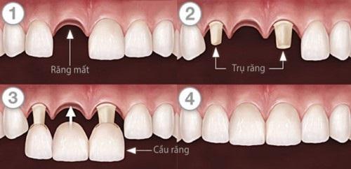 Trồng răng bằng cầu răng - Kỹ thuật phục hình hiệu quả 3