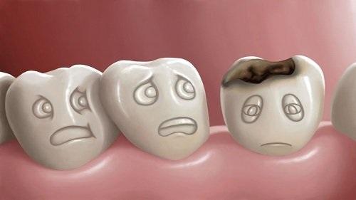 Bọc răng hàm bị sâu giá bao nhiêu? Nha khoa tư vấn 1