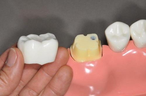 Bọc răng hàm bị sâu giá bao nhiêu? Nha khoa tư vấn 2
