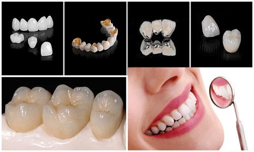 Bọc răng hàm bị sâu giá bao nhiêu? Nha khoa tư vấn 3