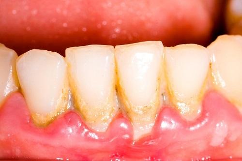 Lấy cao răng có ảnh hưởng gì không? Tìm hiểu cách chăm sóc răng 1