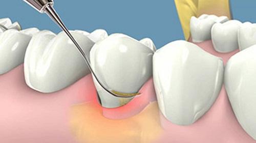 Lấy cao răng có ảnh hưởng gì không? Tìm hiểu cách chăm sóc răng 3