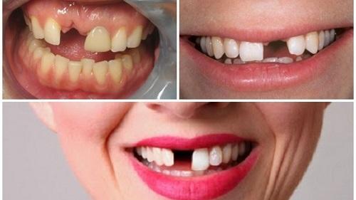 Trồng răng bị rụng - Cách phục hình hiệu quả cho bạn 1