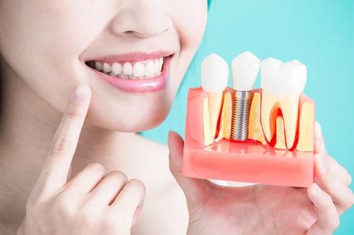 Trồng răng bị rụng - Cách phục hình hiệu quả cho bạn 2