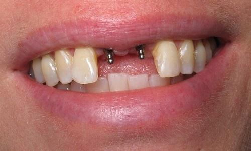 Trồng răng cửa hàm trên - Kỹ thuật phục hình phù hợp 2