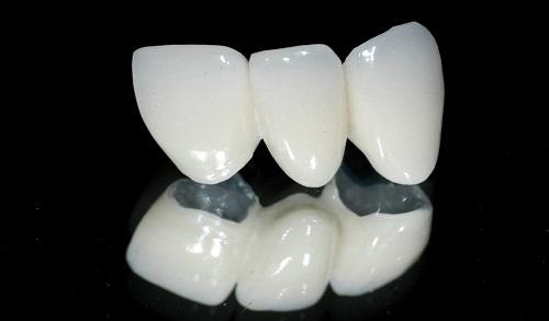 Giải đáp: Bọc răng sứ giữ được bao lâu? *