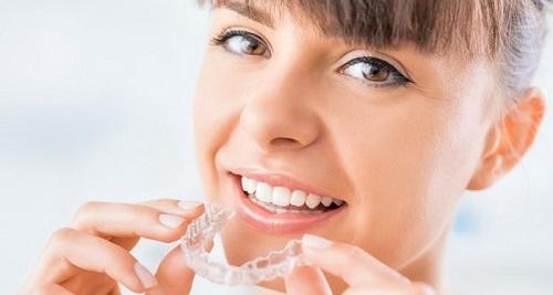 Niềng răng trong suốt mất bao lâu thì kết thúc việc điều trị? 2