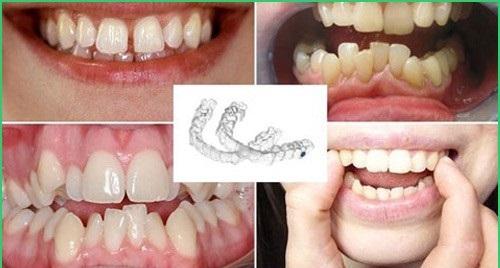Niềng răng trong suốt mất bao lâu thì kết thúc việc điều trị? 4