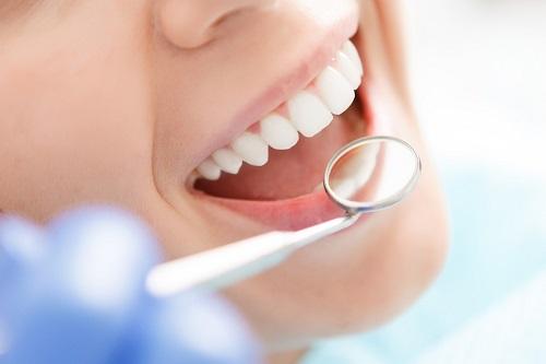 Lấy cao răng ở đâu an toàn? Gợi ý từ nha khoa *