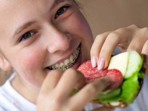 Niềng răng ăn uống như thế nào cho hợp lý và an toàn? 1