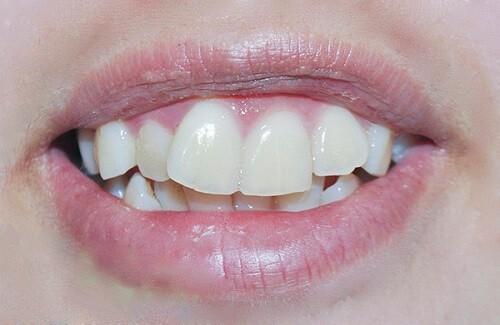 Niềng răng hàm trên bao nhiêu tiền? Phụ thuộc yếu tố nào? 1