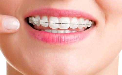 Niềng răng hàm trên bao nhiêu tiền? Phụ thuộc yếu tố nào? 2