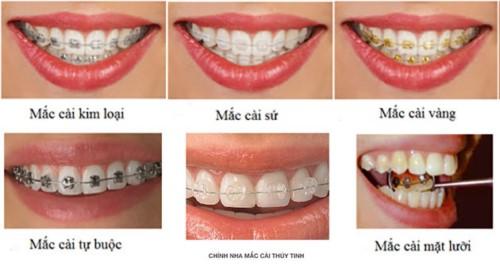 Niềng răng hàm trên bao nhiêu tiền? Phụ thuộc yếu tố nào? 3