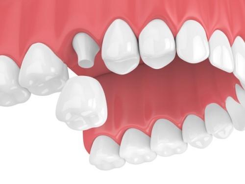 Bọc răng sứ có tháo ra được không? Giải đáp thắc mắc 2