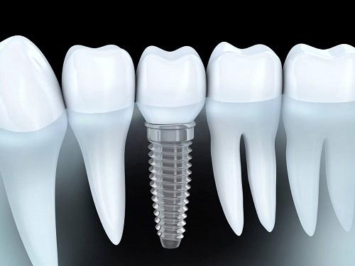 Cắm ghép implant tại nha khoa 2