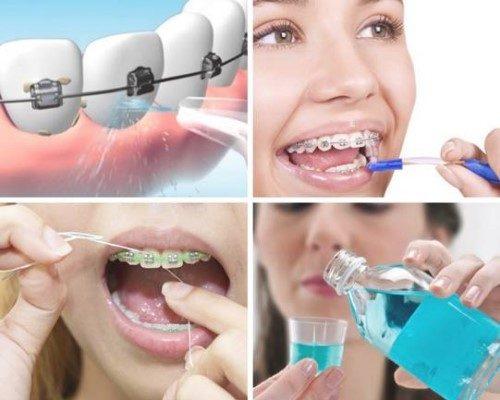 Niềng răng dùng bàn chải gì? Top các bàn chải nên dùng 3