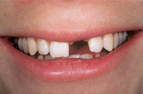 Trồng răng cửa mất bao lâu là hoàn thành? 1