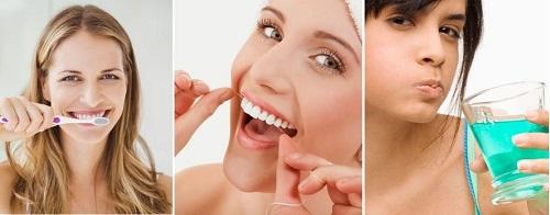 Trồng răng cửa mất bao lâu là hoàn thành? 4