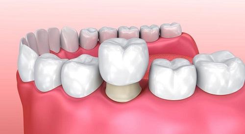 Chụp răng sứ giá bao nhiêu? Giá chụp răng sứ 1