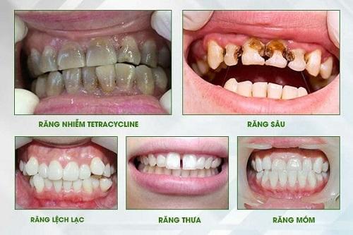 Chụp răng sứ giá bao nhiêu? Giá chụp răng sứ 2