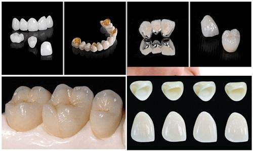 Chụp răng sứ giá bao nhiêu? Giá chụp răng sứ 3
