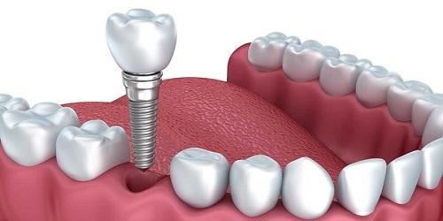 Làm răng implant ở đâu tốt tại TPHCM? 1