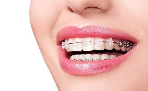 Niềng răng có ảnh hưởng đến sức khỏe không? 1