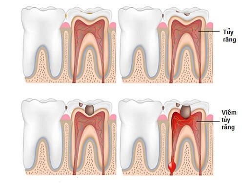 Bọc răng sứ có phải lấy tủy không? Chuyên gia tư vấn 1
