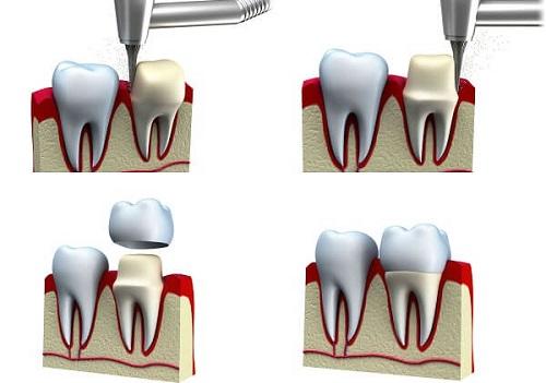 Bọc răng sứ có phải lấy tủy không? Chuyên gia tư vấn 2